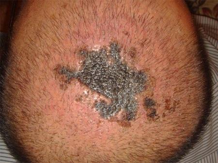 عفونت بعد از کاشت مو , درمان عفونت بعد از کاشت مو , علائم عفونت بعد از کاشت مو